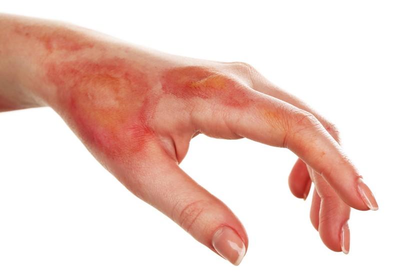 بهبود سریع زخم های عمیق سوختگی با پانسمان نانویی
