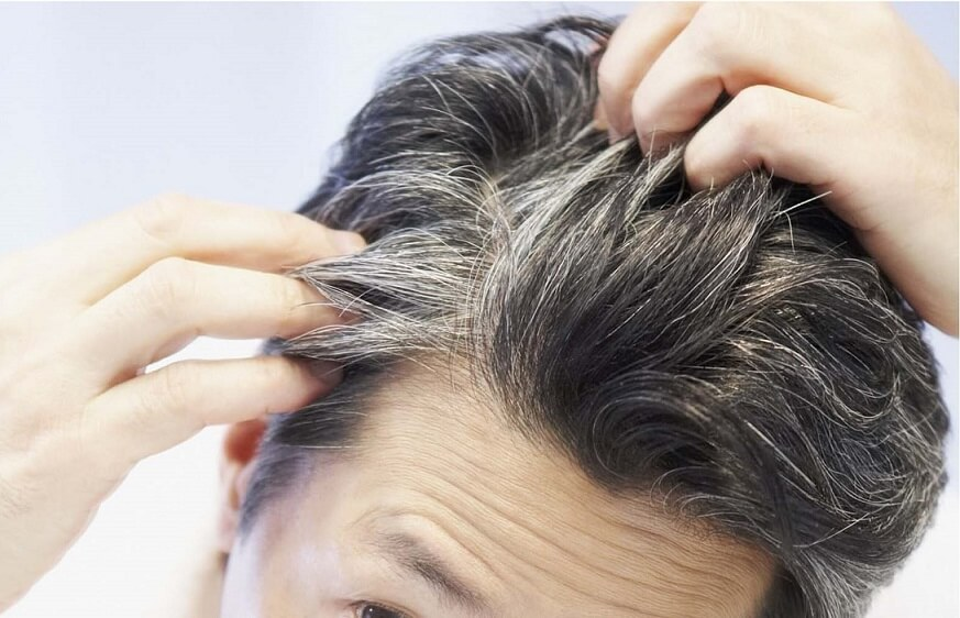 رفع سفیدی مو با شامپو واقعیت دارد؟