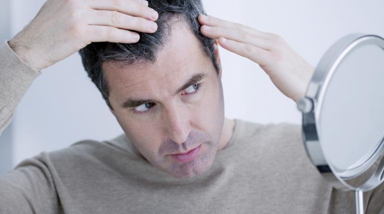 درمانی جدید برای ریزش مو
