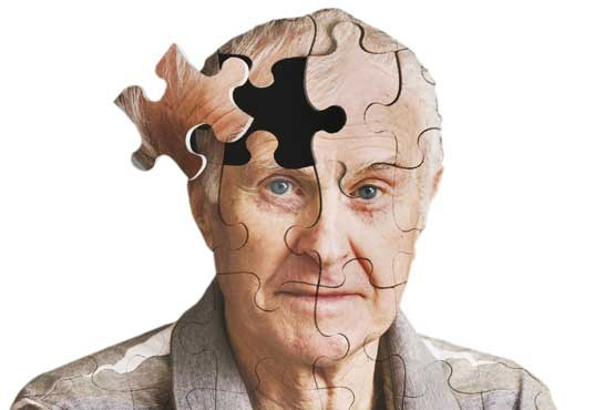 مراقب ۵ علت تعجب آور از دست دادن حافظه باشید!