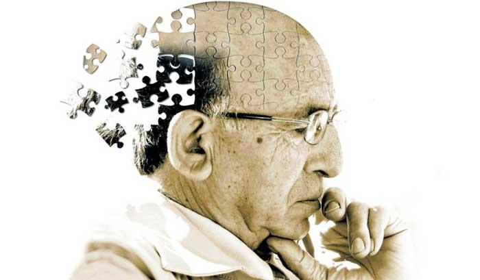 آلزایمر چگونه در مغز گسترش پیدا می کند؟