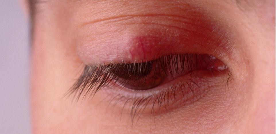 10 درمان خانگی گل مژه