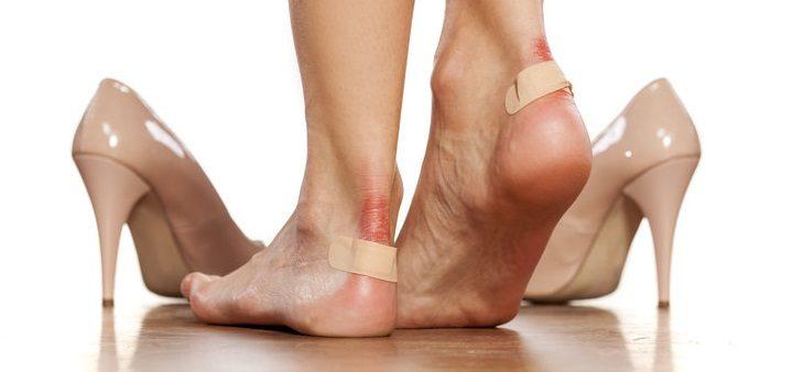چگونه «تاول پا» را درمان کنیم؟