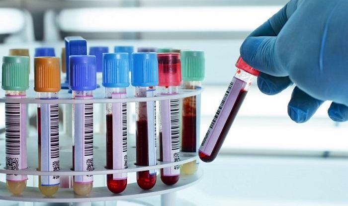 نتیجه آزمایشات پزشکی را خودتان تفسیر کنید