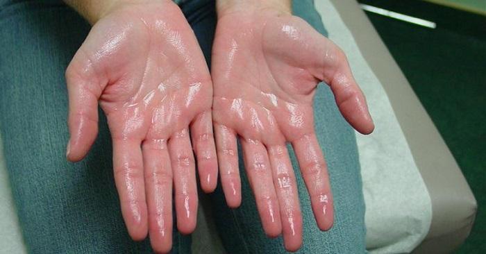 علت و درمان عرق کردن کف دست