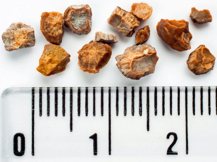 جنس سنگ های کلیه از چیست؟