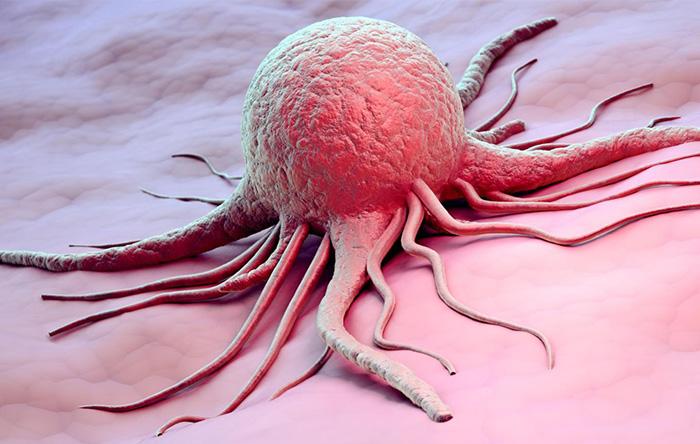 استفاده از نانوحباب برای تصویربرداری از تومور سرطانی