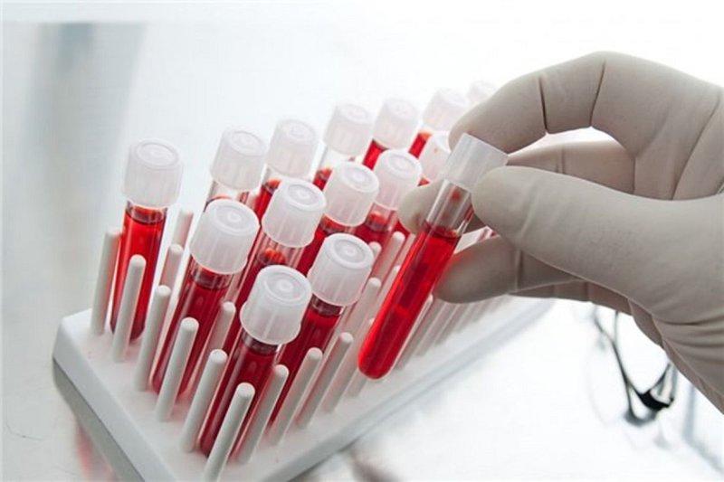 آزمایش خونی که هشت نوع سرطان را تشخیص می دهد