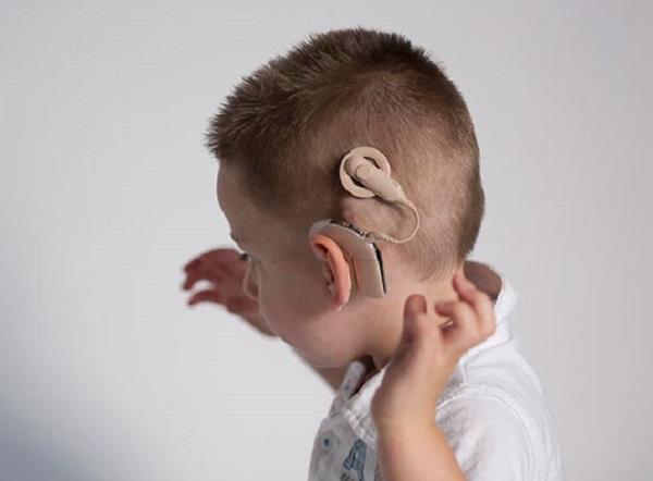انجام ۹۰۲۶ عمل کاشت حلزون شنوایی در طول ۲۵ سال گذشته
