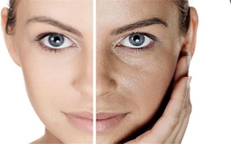 ۵ روش طبیعی و آسان برای خلاصی از ترکهای پوست