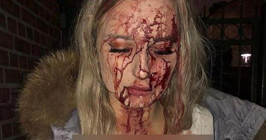 سرانجام وحشتناک دختری که به پارتی شبانه رفته بود + عکس