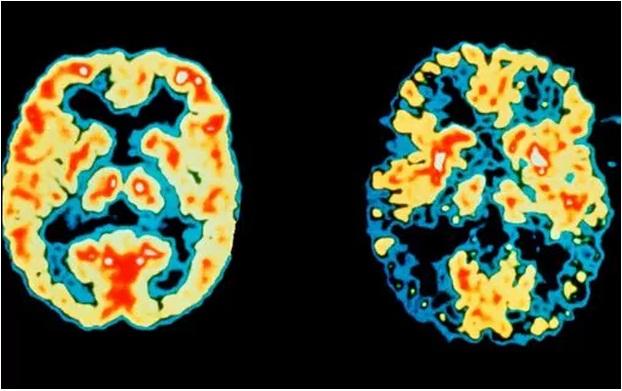 تشخیص آلزایمر7 سال قبل از بروز اولین علائم