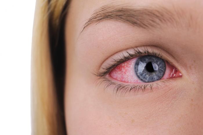 قرمزی چشم چگونه درمان می شود؟