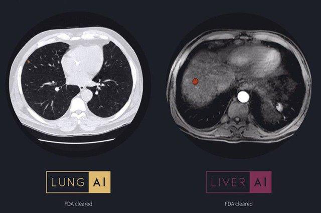 تشخیص جراحات کبد و ریه با استفاده از هوش مصنوعی
