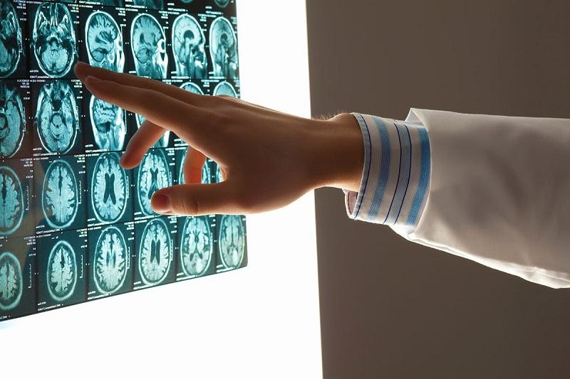 روشی جدید برای درمان لخته های بزرگ مغزی