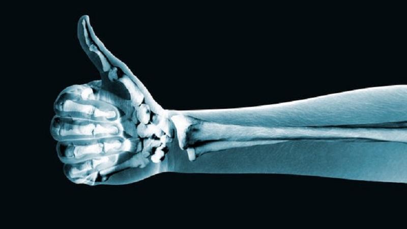8 حقیقتی که باید درباره استخوان هایتان بدانید