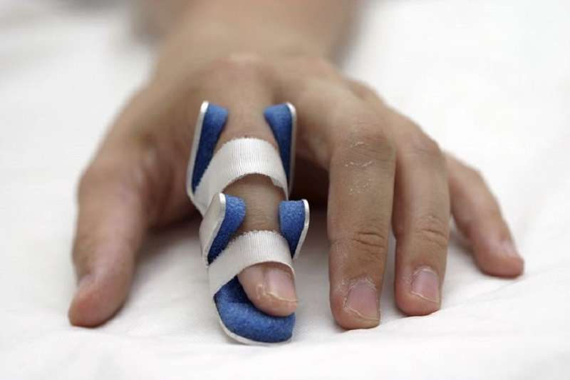 دست و پای مصنوعی به حس لامسه مجهز شد