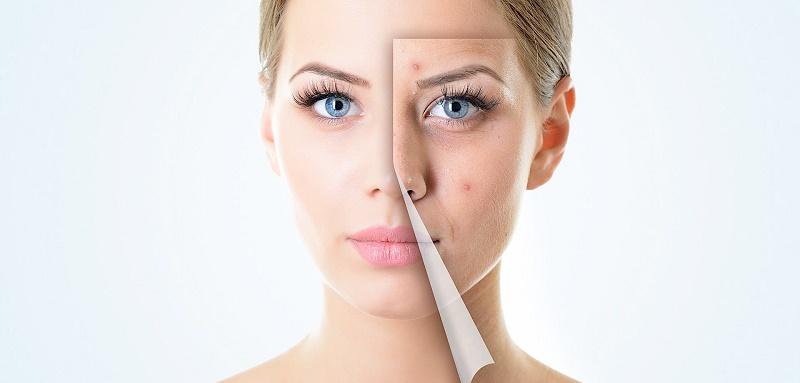 انواع منافذ پوستی و درمان آن ها
