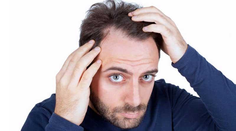 غذاهای خوب و بد برای مو | اینفوگرافیک