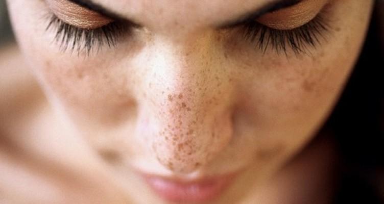 درمانهای طبیعی برای رفع لکههای تیره روی پوست یا ملاسما