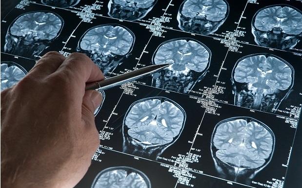 آلزایمر قابل کنترل می شود