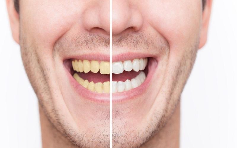 راه های جلوگیری از زردی دندان ها