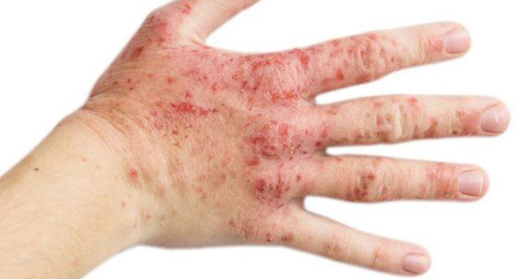 روشی جدید برای درمان اگزما