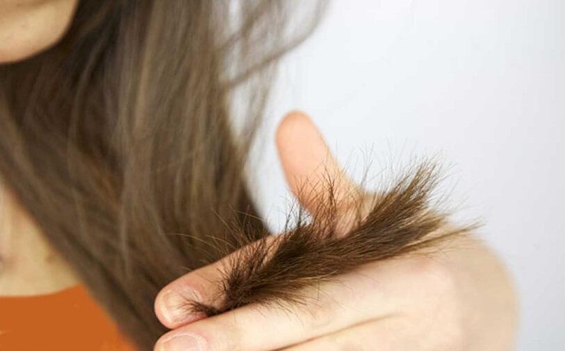 ۵ درمان ساده برای موهای خشک و آسیب دیده