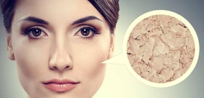 چهار بیماری که با خشکی پوست همراه هستند