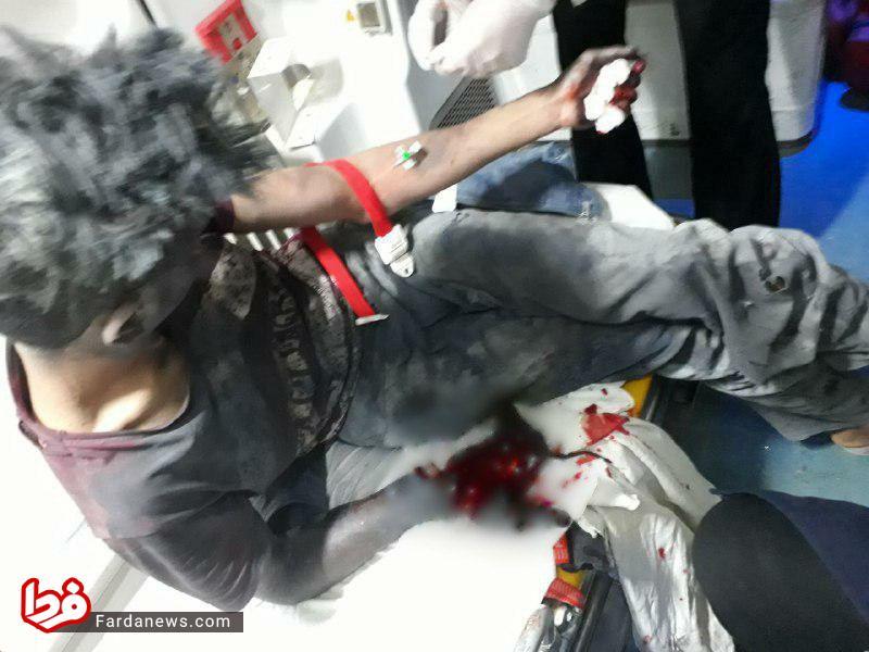 قطع دست نوجوان ۱۶ ساله در انفجار ترقه + عکس (۱۶ +)