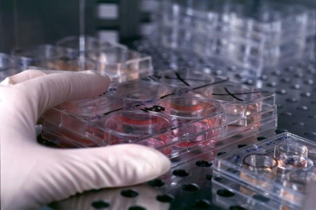 ترمیم آسیب عروقی با کمک سلول های بنیادی