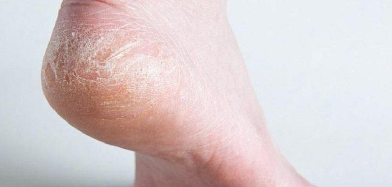 علت ترک های عمیق کف پا چیست