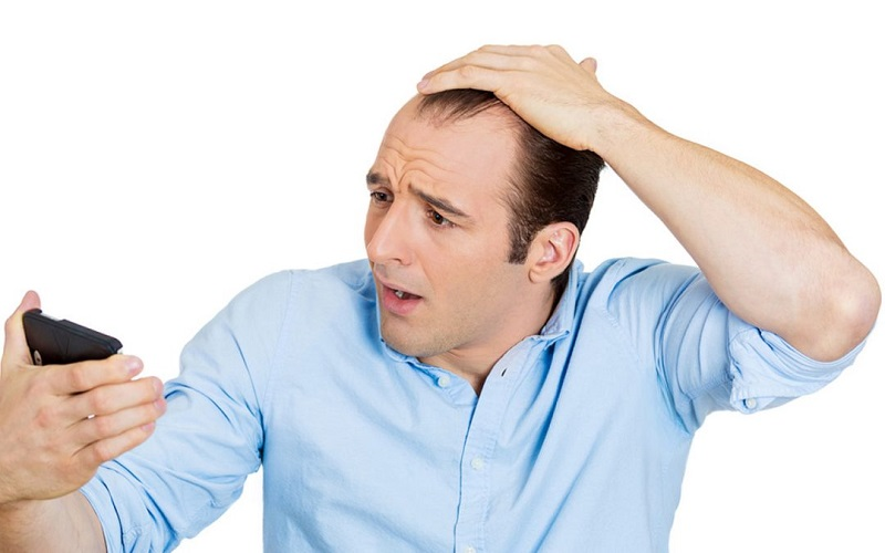 علت ریزش مو در مردان و درمان آن