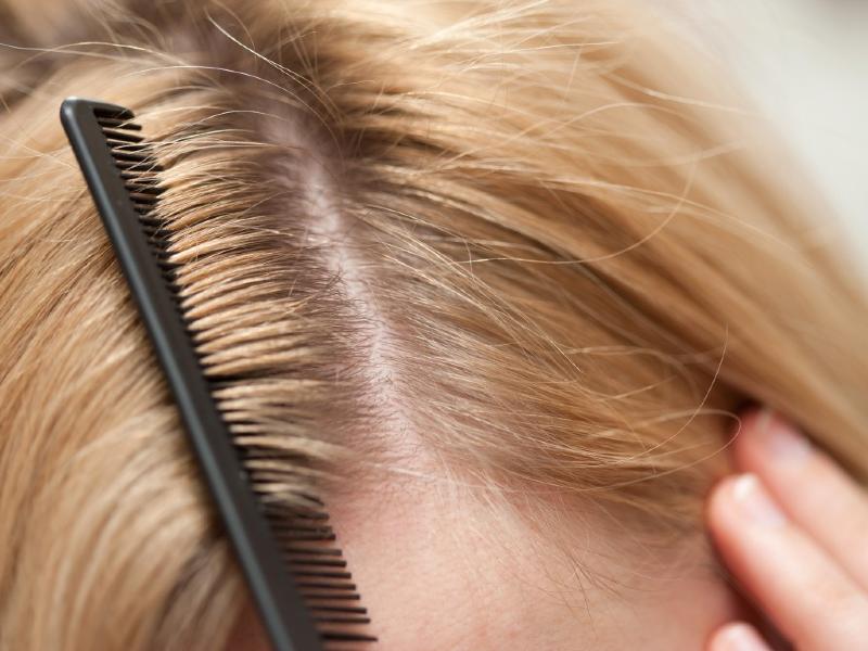 توصیههایی برای جلوگیری از ریزش مو