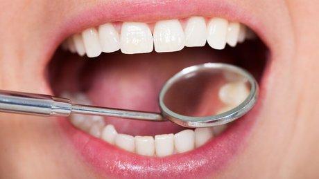 دندانها میتوانند خود را ترمیم کنند؟