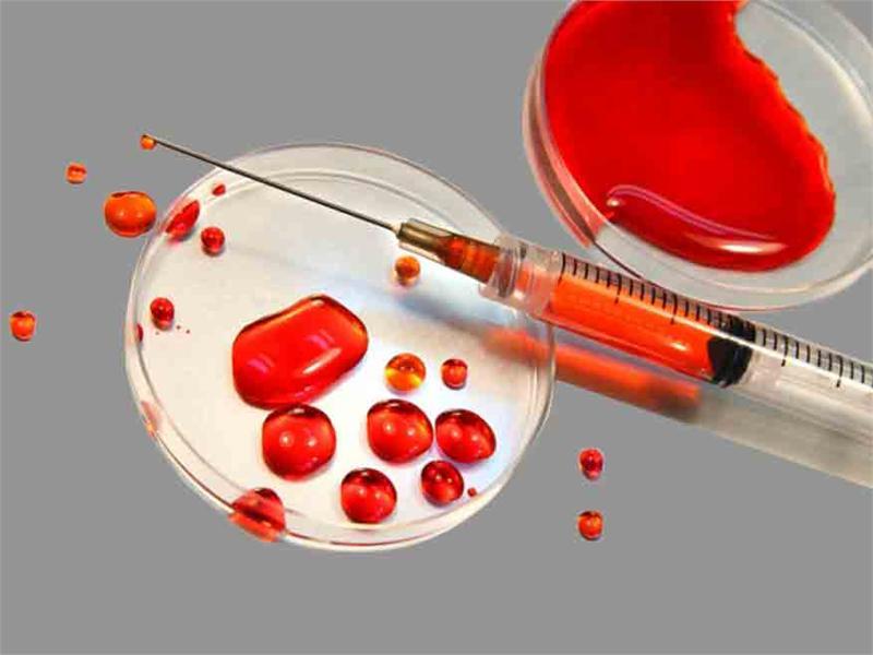 کشفی جدید برای بهبود زندگی مبتلایان به اختلالات خونی