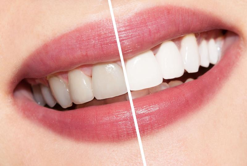 سفید کننده دندان خانگی با زردچوبه و آب اکسیژنه
