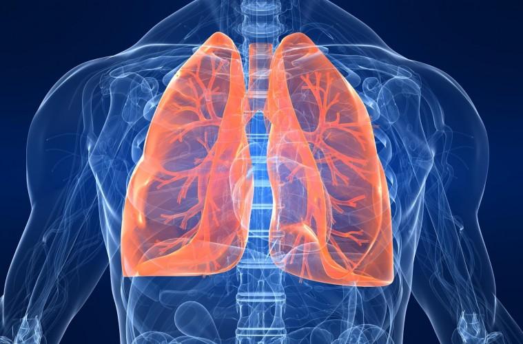 بزرگترین چالش برای درمان موفقیت آمیز سرطان ریه کشف شد
