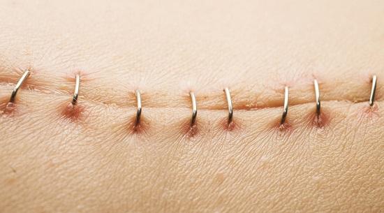 پزشکی شخصی ،راهی برای بهبود زخم های پوستی در آینده