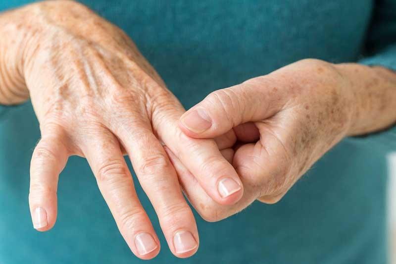 درمان آرتریت با هیدروژل