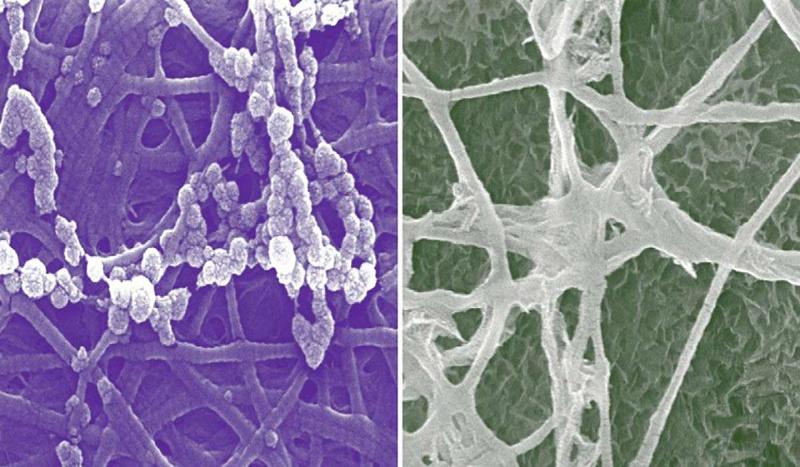 راهی نو برای ترمیم استخوانها پیدا شد