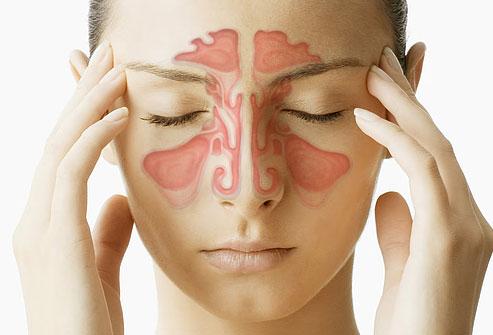 10 درمان معجزه گر سینوزیت