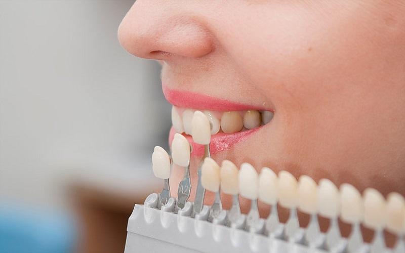 چه دندانهایی نیاز به روکش دارند