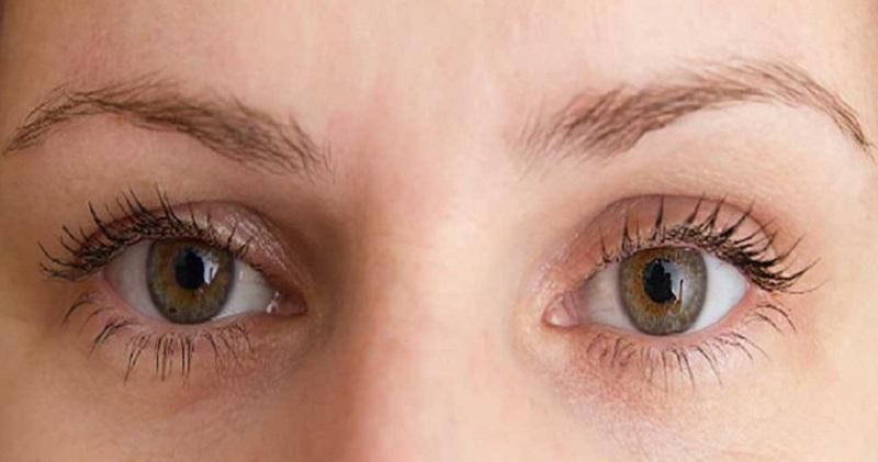 روش های درمان افتادگی پلک