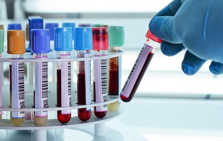 پیش بینی بیماری های قلبی با آزمایش خون