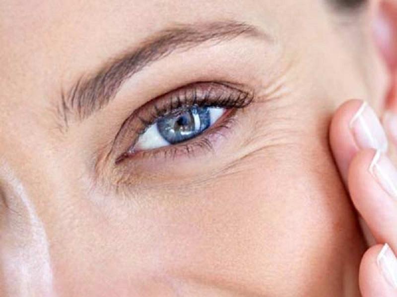 چه چیزهایی باعث می شود دور چشم چروک شود؟