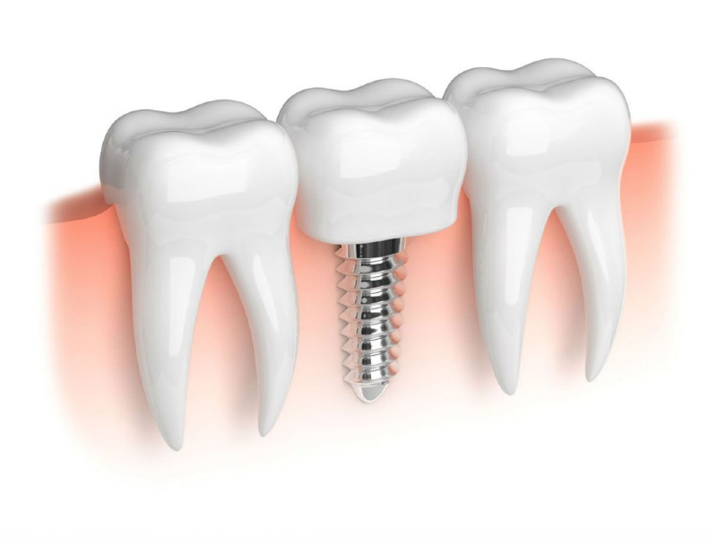 ایمپلنت های دندانی سرطان زا هستند