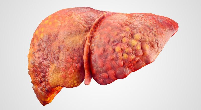 بیماریهای کبدی میان افراد چاق