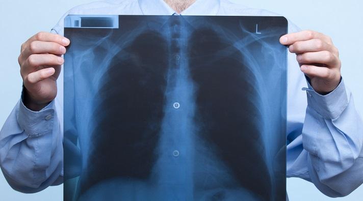 دلیل مقاومت سرطان ریه در برابر شیمی درمانی کشف شد