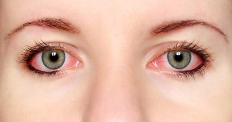 لکه های قرمز  چشم درباره سلامتی شما چه میگویند؟